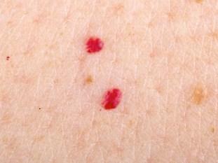 red-moles-172523