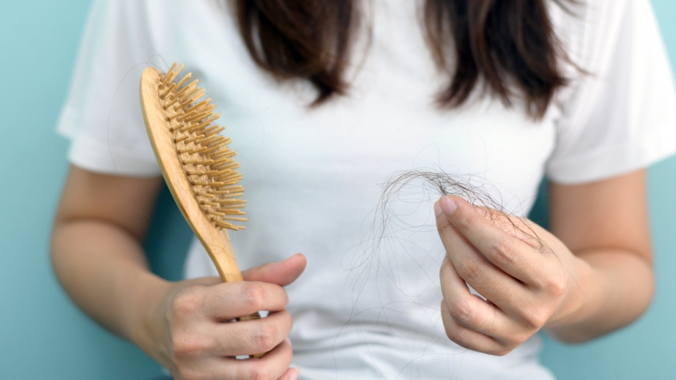 Woman holding hair brush and strands of hair